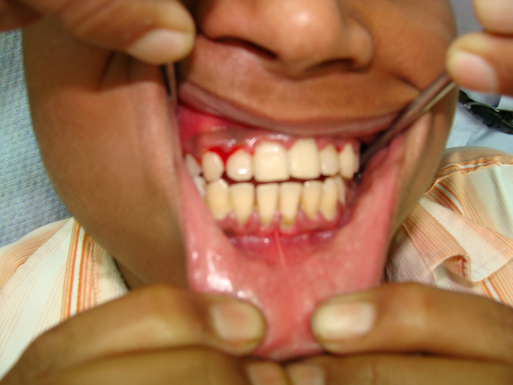 Bleeding Gums Image source -- https://www.flickr.com/photos/36948558@N03/3413115597/sizes/l